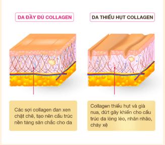 thieu-hut-collagen