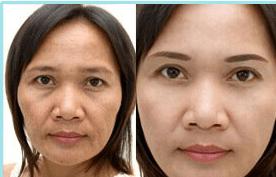 Thực hư tác dụng của kem chống lão hóa Dakami 4