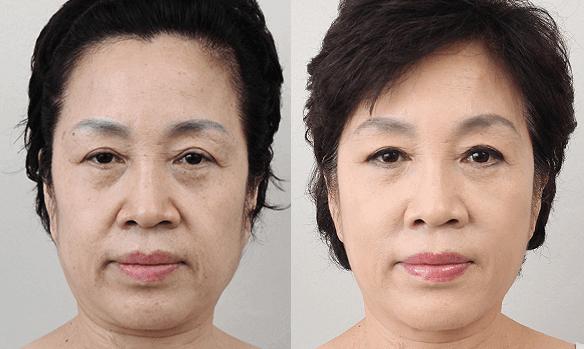 Đột phá mới trị lão hóa đã có mặt tại Việt Nam 6