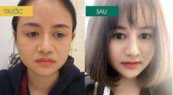 Make up Xskin sản phẩm tắm trắng đầu tiên tại Việt Nam 5