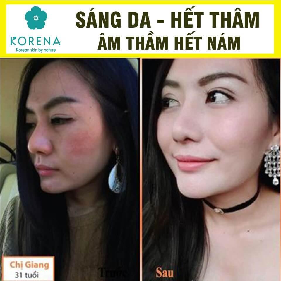 khac-hang-multi-collagen-co-q10-01