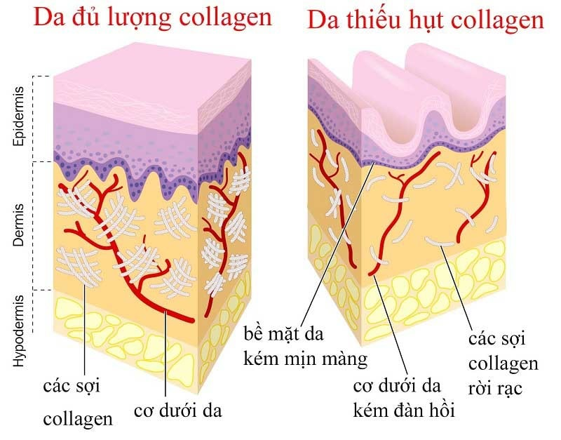 vai-tro-cua-collagen-doi-voi-da