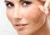 Mẹo cải thiện da sạm màu bằng nguyên liệu tự nhiên