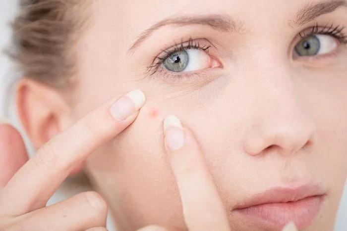 Bật mí cách trị mụn cho da khô cực kỳ hiệu quả 1